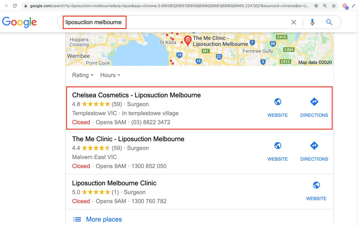 """Number 1 organic ranking for """"fat transfer to buttocks Melbourne"""